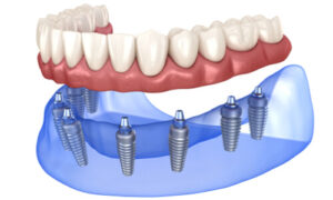 Complete dentures supported by dental implants.