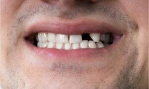 man with teeth gap